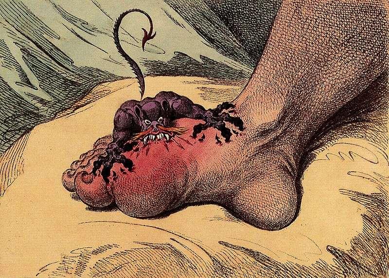 La goutte est une maladie douloureuse, souvent développée au niveau du gros orteil. © DR