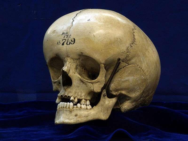L'hydrocéphalie entraîne un accroissement du volume de la tête. Le terme vient du grec ancien húdôr (eau) et kephalế (tête). © National Museum of Health & Medicine, Wikimedia Commons, CC by 2.0