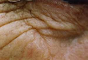 Une bonne crème antiride permet d'estomper les rides sous les yeux, mais pas de les supprimer.
