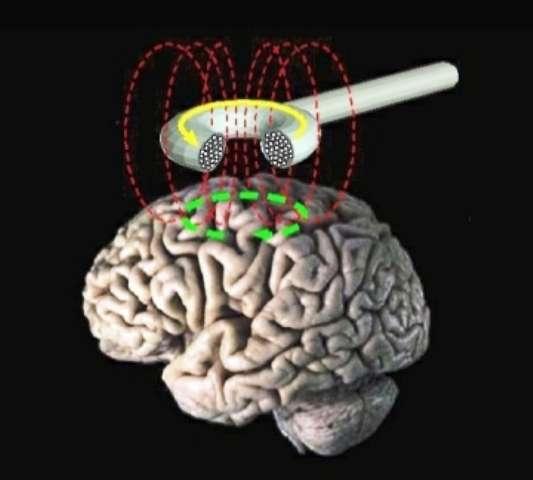 La stimulation magnétique transcranienne (ou TMS, abréviation de l'anglais Transcranial Magnetic Stimulation). © domaine public