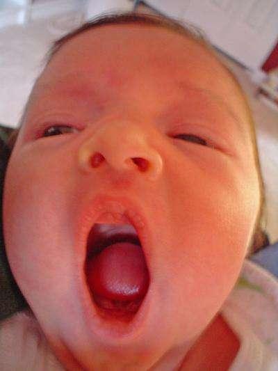 Les bâillements se produisent avant même la naissance ! Mais là, il n'y a personne pour les voir. © Chris, rudecactus.com, cc by nc sa 2.0