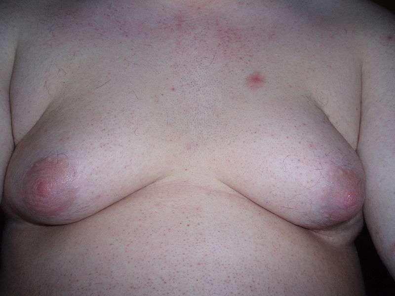 La gynécomastie peut simplement être gênante, mais aussi être le signe d'une maladie plus grave. © FatM1ke, Wikimedia, GFDL 1.2