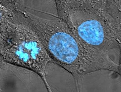 Cellules ex vivo de la lignée HeLa, l'une des plus anciennes, utilisée partout dans le monde. Elles proviennent de la tumeur d'une femme américaine, Henrietta Lacks (longtemps appelée Helen Lane pour conserver son anonymat), morte du cancer en 1951. La couleur bleue repère ici les noyaux cellulaires et a été obtenue par une technique de coloration puis un éclairage déclenchant une fluorescence. © Domaine public