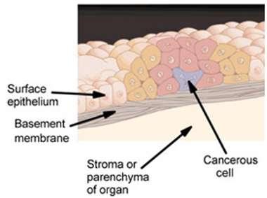 Le cancer in situ se limite à un seul tissu, comme l'illustre ce schéma. La cellule cancéreuse (cancerous cell) va se multiplier dans un tissu épithélial (surface epithelium). Plus tard, ces cellules pourront alors traverser la membrane basale (basement membrane) et coloniser le tissu voisin dans le même organe (stroma or parenchyma of organ). © National Cancer Institute, Wikipédia, DP