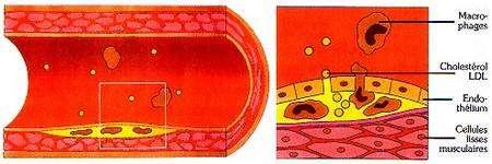 L'athérome est un dépôt dans la paroi interne de l'artère. © prevention.ch