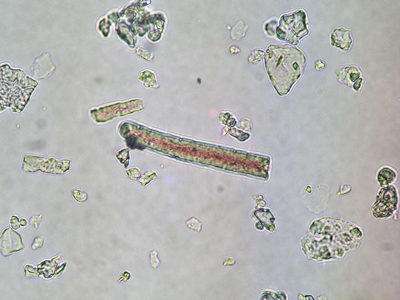 Photographie au microscope d'un phytolithe, en forme de cellule allongée. © Henri-Georges Naton, Wikipédia, GNU 1.2