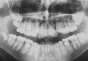 Pour diagnostiquer l'ostéoporose, faites un grand sourire !