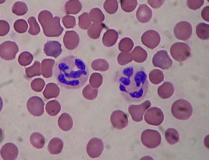 Image de microscopie optique de deux granulocytes. Ces cellules étaient anciennement appelées polynucléaires, car on a l'impression qu'elles contiennent plusieurs noyaux. © Salvadorjo, Wikimedia Commons, cc by sa 3.0