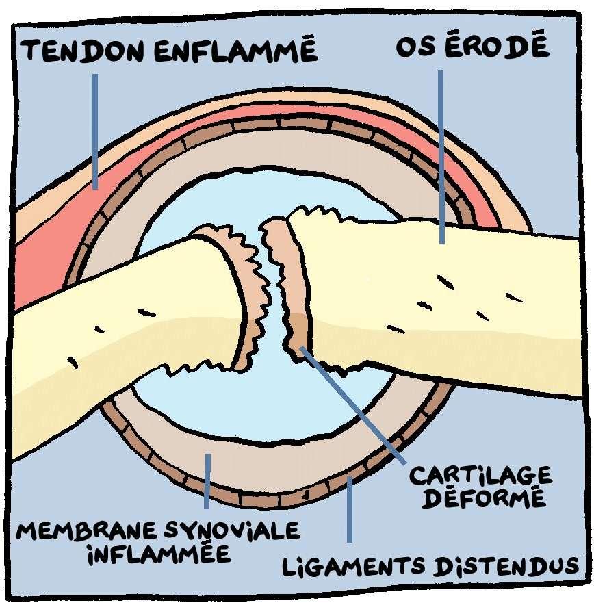Dans la polyarthrite, les éléments de l'articulation sont touchés : l'os, le cartilage, la membrane synoviale, les ligaments et même les tendons. © Andar (voir le lien ci-dessous)