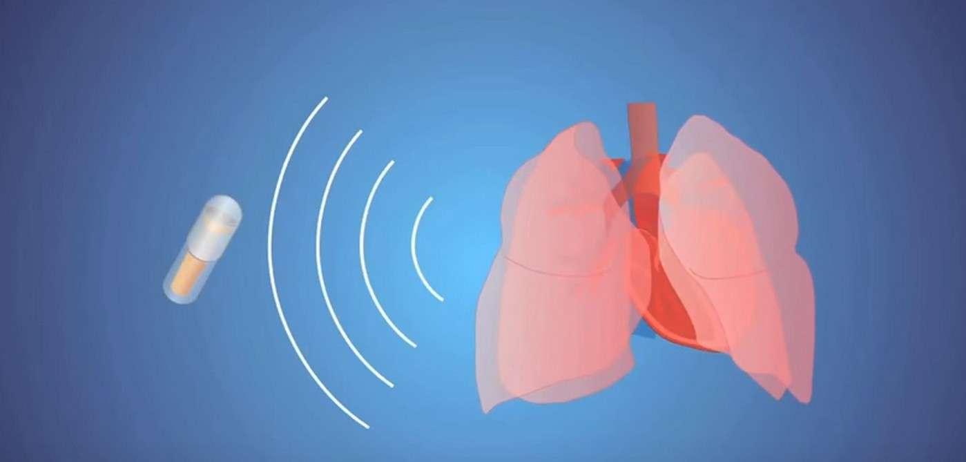 Des chercheurs ont démontré qu'il est possible d'extraire un signal cardiaque et respiratoire fiable à partir des sons captés depuis le tube digestif. Ils pensent qu'une pilule-stéthoscope à ingérer pourrait avantageusement remplacer les appareils traditionnels de mesure du rythme cardiaque et de la respiration. © Melanie Gonick, MIT