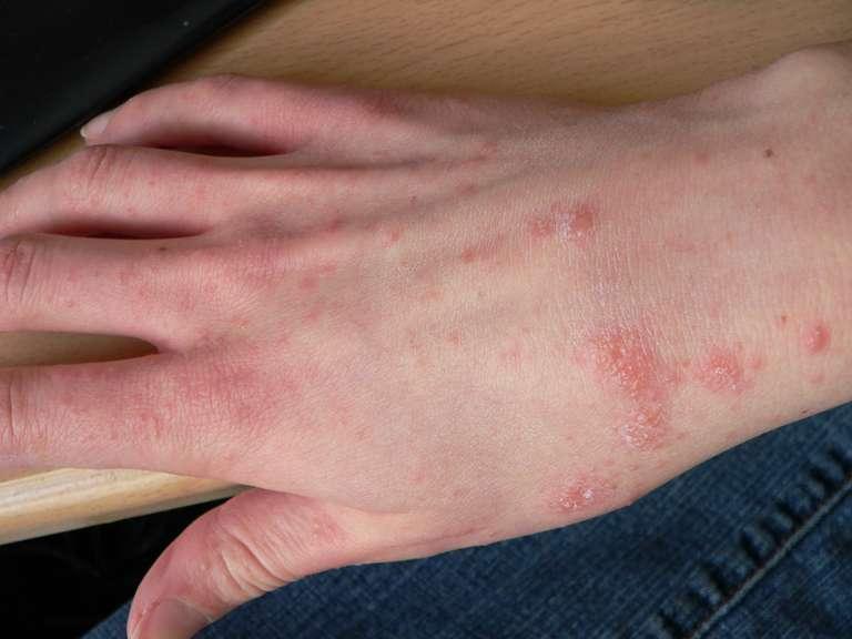 La gale induit de fortes démangeaisons. C'est une maladie très ancienne qui aurait été décrite pour la première fois dans un texte médical chinois du XVIe siècle avant J.-C. © Wikimedia Commons, DP