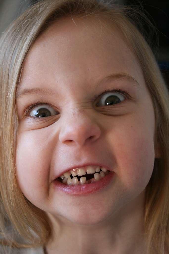 Le bisphénol A et d'autres perturbateurs endocriniens pourraient être à l'origine d'une maladie des dents récemment décrite chez les enfants, appelée MIH. Celle-ci se caractérise par des taches blanches causées par une hypominéralisation, rendant les dents plus sensibles à la douleur et plus susceptibles aux caries. © Foamcow, Flickr, cc by nc nd 2.0