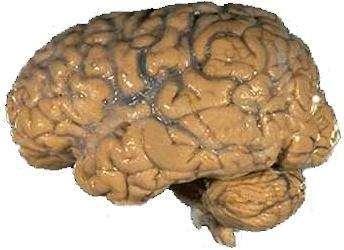 Cerveau humain.