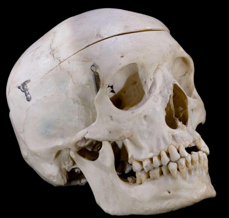 Le splanchnocrâne est une partie du squelette céphalique. © Didier Descouens, Wikimedia Commons, CC by-sa 4.0