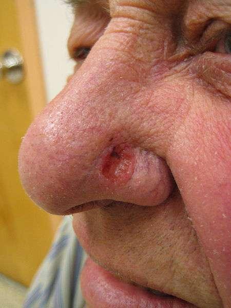 Le carcinome basocellulaire est un cancer de la peau qui ne produit pas de métastases. © James Heilman MD, Wikipédia CC by 3.0
