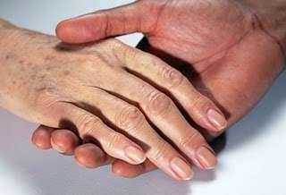Les taches de vieillesse apparaissent souvent sur les mains, le visage et le dos. © DR