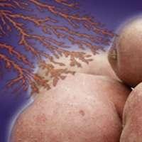 Des électrons pour empêcher les patates de germer