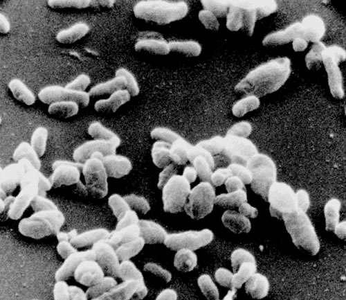 La fièvre Q est provoquée par la bactérie Coxiella burnetii. © DR