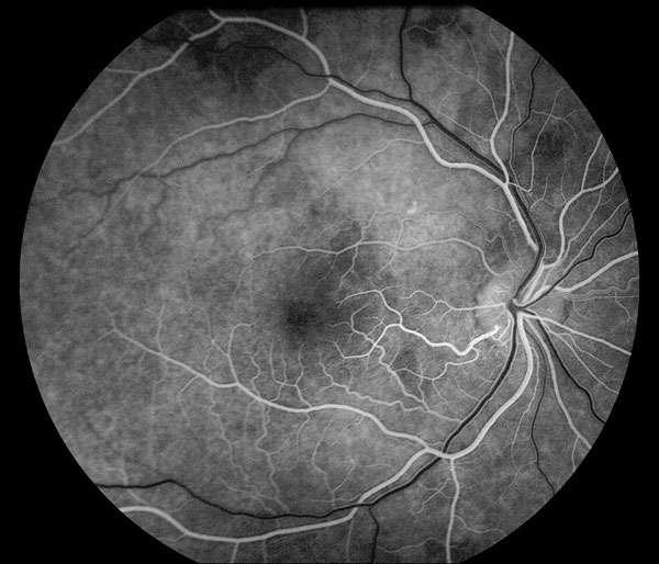 L'angiographie rétinienne permet de distinguer les vaisseaux sanguins au sein de la rétine. © University of Iowa, Carver College of Medicine