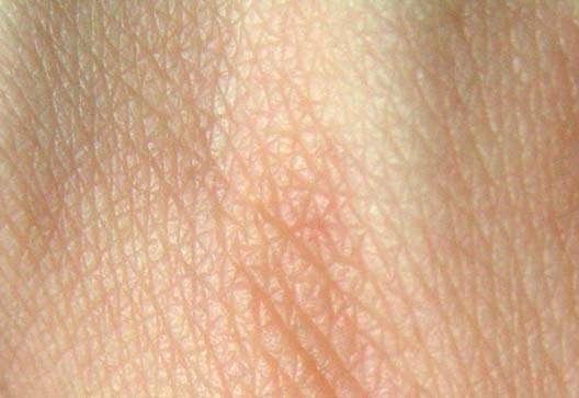 La peau peut être atteinte par de nombreuses maladies, dont l'ichtyose. © Wikimedia Commons