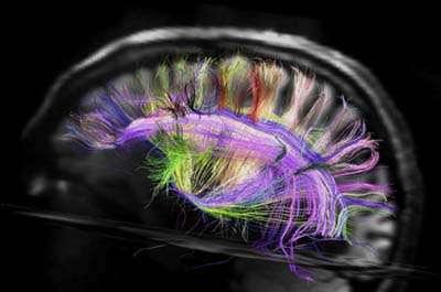 On pensait le cerveau humain d'une complexité inimaginable. On le pense toujours, mais ses secrets pourraient être moins profondément enfouis que prévu. Sa structure de base est simple et ressemble à un quadrillage ou une grille tridimensionnelle. © Martinos Center for Biomedical Imaging, Massachusetts General Hospital, MGH-UCLA Human Connectome Project