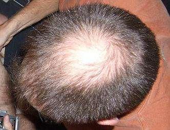 L'alopécie désigne toutes les formes de pertes de cheveux et peut toucher les deux sexes. © Mike Burn, Flickr, CC by-sa 2.0