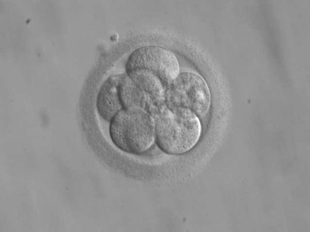Les embryons humains contiennent des cellules souches pluripotentes voire totipotentes, capables de se différencier en n'importe quel tissu. Cette propriété intéresse des scientifiques, qui y voient l'occasion de soigner des maladies aujourd'hui incurables. Mais une telle récolte, réalisée dans les toutes premières phases de développement, s'accompagne de la destruction de l'embryon, ce qui soulève des questions éthiques. © Ekem, Wikipédia, DP