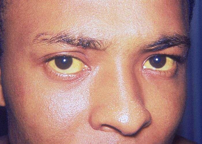 La bilirubine est un pigment jaune qui colore les yeux, la peau et les muqueuses. Dans les stades précoces de la maladie, seuls les yeux permettent de diagnostiquer l'apparition de la jaunisse. © Thomas F. Sellers/Emory University, DP
