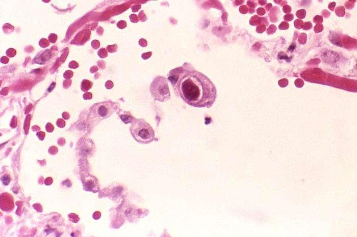 Le cytomégalovirus est le plus souvent bénin, mais peut se révéler agressif chez des patients immunodéprimés, comme les personnes infectées par le VIH. Et il pourrait également faciliter l'apparition du diabète ! © Edwin P. Ewing, CDC, DP