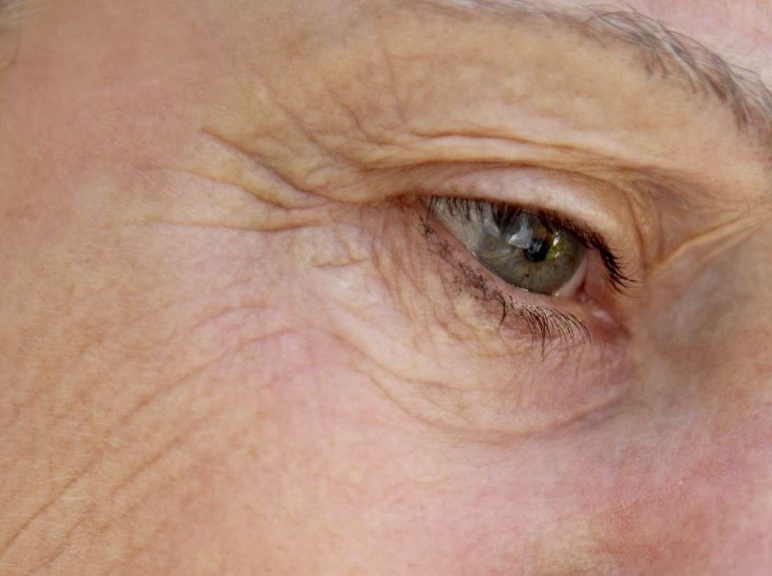 De la myopie à la presbytie : soigner tous les troubles de la vue par la chirurgie réfractive. © Phovoir