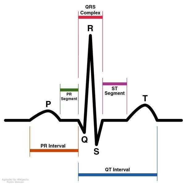 Cette image représente un électrocardiogramme normal, et chaque onde P, Q, R, S et T est signalée. © Agateller (Anthony Atkielski), Wikipédia, DP
