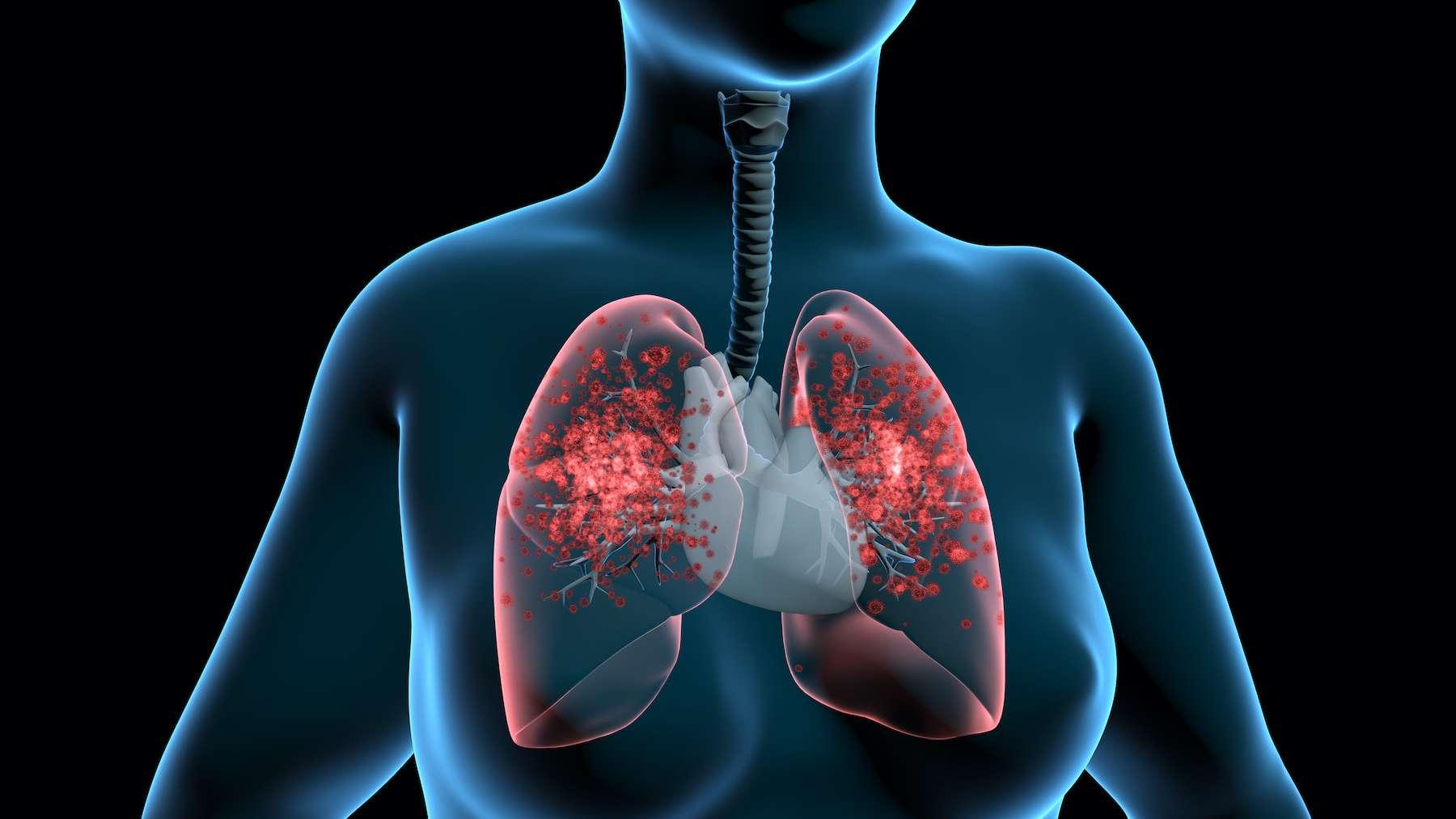 Le SARS-CoV-2 peut être transmis via une transplantation pulmonaire. © TuMeggy, Adobe Stock