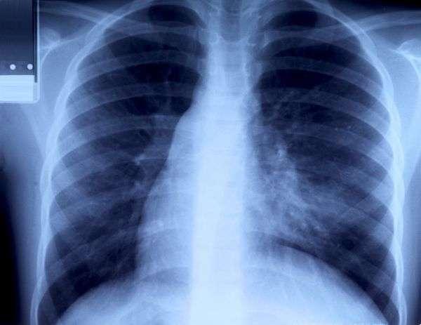 Pour dépister le cancer du poumon précocement, les scanners hélicoïdaux seraient plus efficaces que les radiographies des poumons. © bravajulia/shutterstock.com