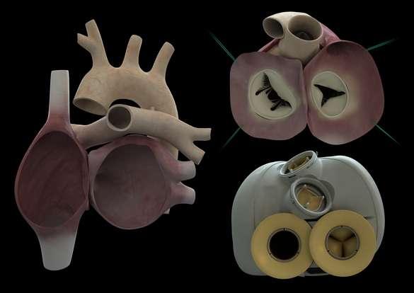 Le premier cœur artificiel total, capable de s'adapter à la vie de son porteur, a été implanté chez un patient le 18 décembre 2013. Les deux ventricules (à droite) sont greffés sur les oreillettes (à gauche). Le matériau dont il est constitué le rend biocompatible. Le premier patient chez qui il a été installé est décédé 74 jours après l'opération. Les causes sont actuellement recherchées. © Carmat