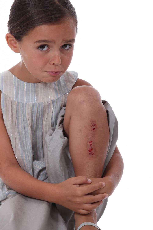 La coagulation du sang est une des étapes de l'hémostase. © Phovoir