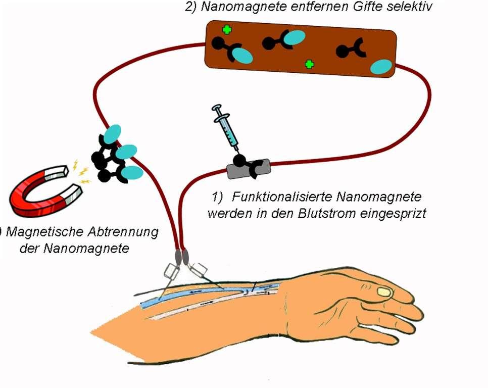 Principe de la méthode de filtration du sang avec des nanoaimants. On commence par faire circuler le sang d'un patient à l'extérieur de son corps pour le réinjecter ensuite à la façon d'une dialyse classique. On injecte les nanoaimants (ovoïdes bleus) qui vont fixer des toxines (noires). Les nanoaimants sont ensuite piégés avec un aimant externe. Crédit : ETH Zurich