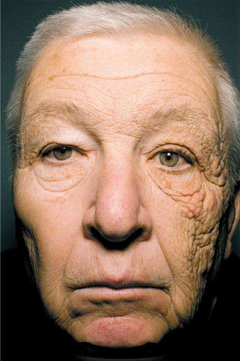 William McElligot souffre très précisément de dermatohéliose, une maladie qui se caractérise par un vieillissement prématuré de la peau à cause des rayons du soleil. © Gordon et Brieva, New England Journal of Medicine
