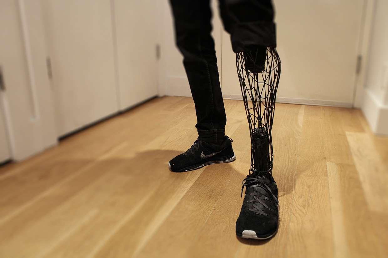 L'Exo-Prosthetic Leg imaginée par le designer industriel William Root. Pour parvenir à un tel résultat, il veut combiner la numérisation et la modélisation 3D ainsi que l'impression 3D à partir de poudre de titane. © William Root