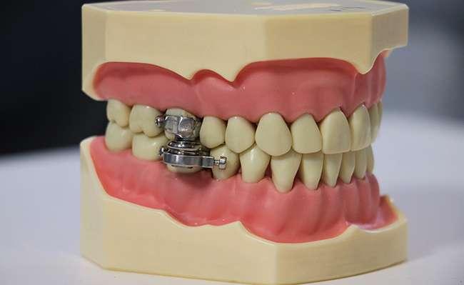 Le dispositif DentalSlim Diet Control empêche la bouche de s'ouvrir de plus de deux millimètres. © Université d'Otago