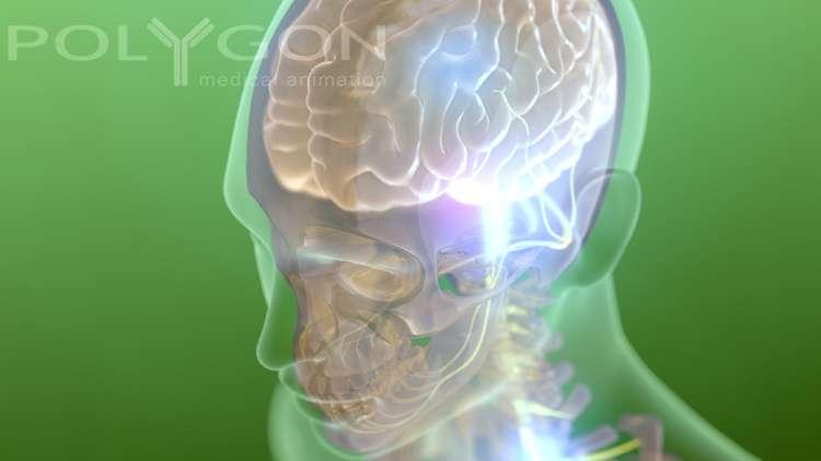 L'électronique injectée dans le cerveau permettrait d'enregistrer l'activité neurale. © Polygon Medical Animation, Flickr, CC by-nc-nd 2.0