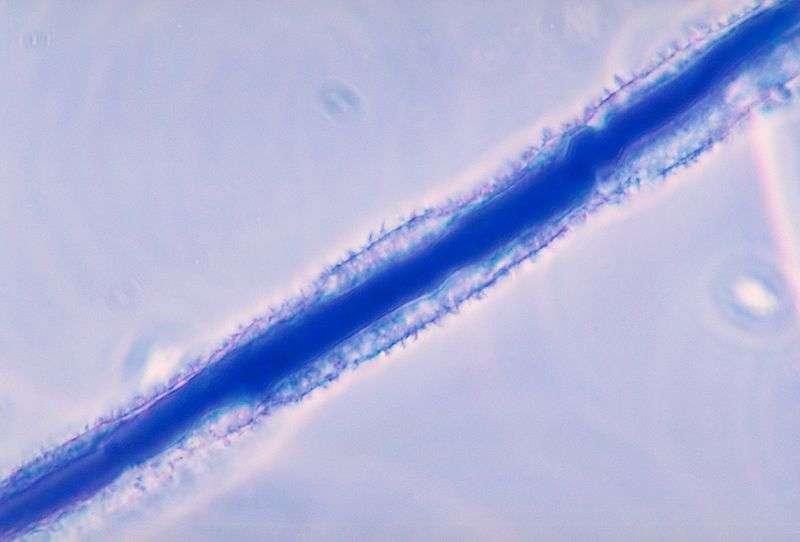 L'aflatoxine provient des premières lettres du nom du genre et de l'espèce de champignon qui la produit : Aspergillus flavus, que l'on voit à l'image. La molécule est suspectée de causer les dommages hépatiques de la maladie qui frappe le Vietnam. Mais elle n'explique probablement pas tous les symptômes. © Libero Ajello, CDC, DP