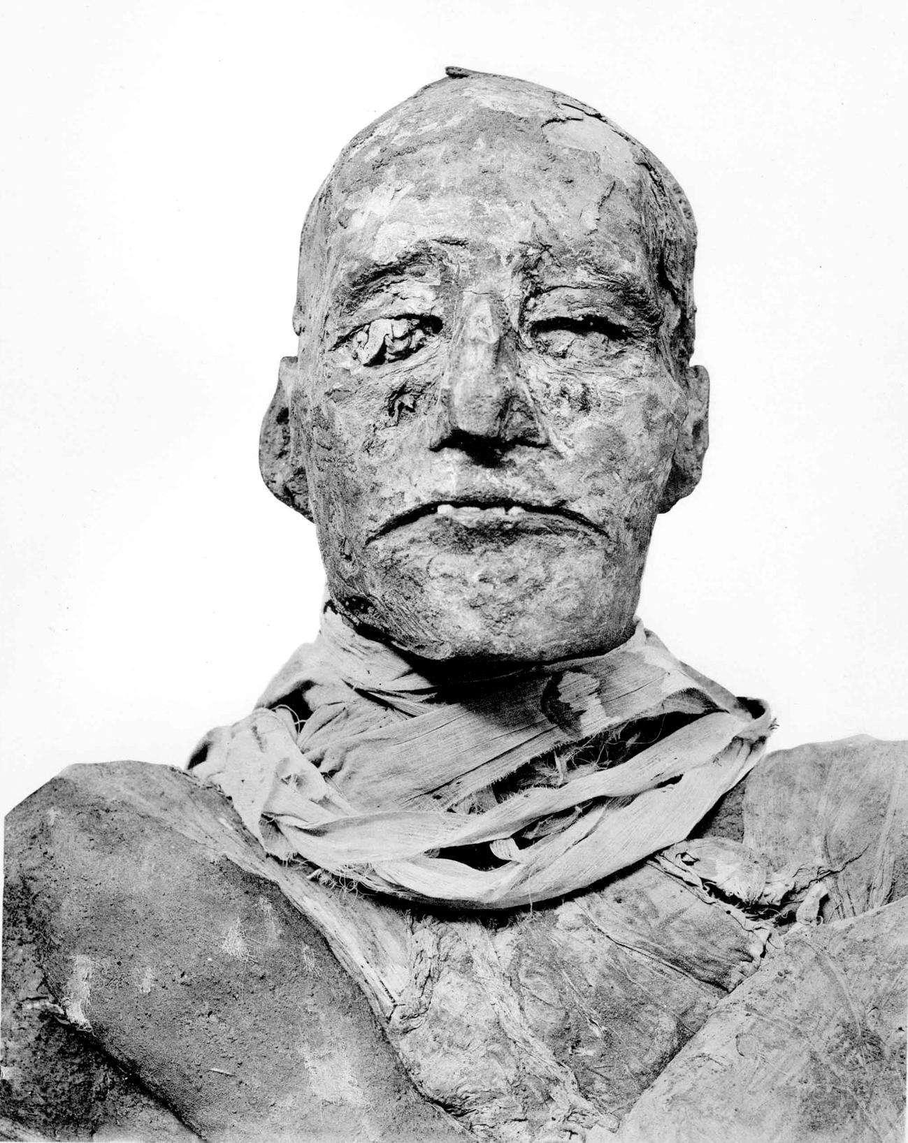 La momie de Ramsès III. Le règne de ce pharaon a duré plus de 31 ans. Il n'a cessé de lutter contre la corruption qui gangrenait son pays. © Zahi Hawass et al. 2012, British Medical Journal