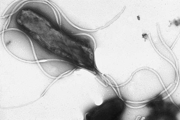 La bactérie Helicobacter pylori infecte la muqueuse gastrique et cause de nombreux ulcères qui parfois deviennent des cancers de l'estomac. Elle est l'une des principales causes de cancers dus à des infections. © Yutaka Tstutsumi, Wikipédia