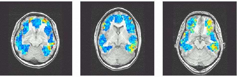Imagerie par résonance magnétique d'un cerveau soumis à différents stimuli. Source : Carnegie Mellon University