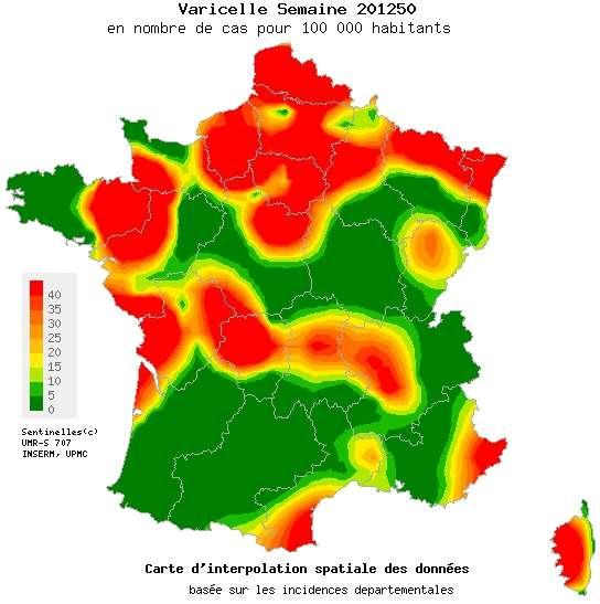 Le nord de la France subit de plein fouet l'épidémie de varicelle, tandis que certaines régions du centre et du sud sont pour l'heure épargnées. La roue pourrait tourner. © Réseau Sentinelles