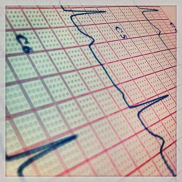 Une Australienne a été sauvée par un compresseur cardiaque externe, comme il en existe aussi en France. Son électrocardiogramme est resté plat pendant 42 minutes. © a.drian, Flickr, cc by nd 2.0
