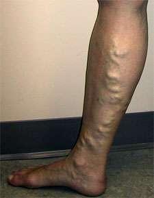 Les varices apparaissent surtout chez les femmes, par manque d'activité, ou héréditairement. © DR