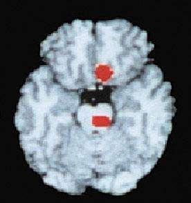 Les taches rouges montrées par cette tomographie par émission de positrons (TEP) indiquent une augmentation du débit sanguin provoquée par une crise de migraine.