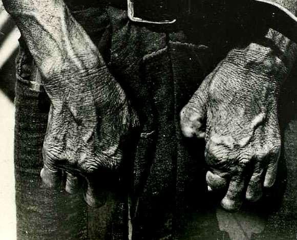 La lèpre se caractérise notamment par des infirmités sévères au niveau de la peau et des membres. Ces difformités sont peut-être à l'origine de l'exclusion sociale des malades, se signalant par une cloche au Moyen Âge et étant plus tard regroupés dans des léproseries. Cette mise à l'écart a cependant peut-être induit une sélection naturelle permettant aux Européens actuels d'être naturellement résistants à cette maladie. © Otis Historical Archives of National Museum of Health & Medicine, Wikipédia, cc by 2.0