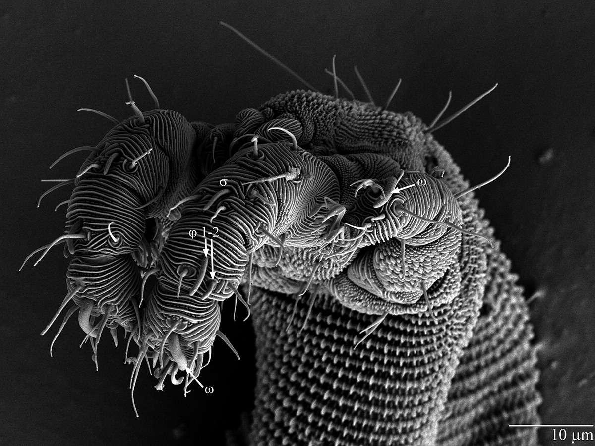 Gros plan de la tête d'un individu femelle d'Osperalycus tenerphagus, dernière espèce découverte de la famille des acariens vermiformes. © US Department of Agriculture, Agricultural Research Service, Electron and Confocal Microscopy Unit (Beltsville, Maryland, États-Unis)
